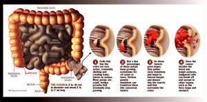 colon cancernum